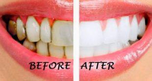 Top 12 Cách làm đẹp răng tự nhiên, trắng sáng hiệu quả nhất