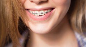 Top 7 Địa chỉ niềng răng uy tín nhất quận 1, TP. HCM