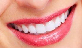 Top 9 Cách làm trắng răng đơn giản tại nhà